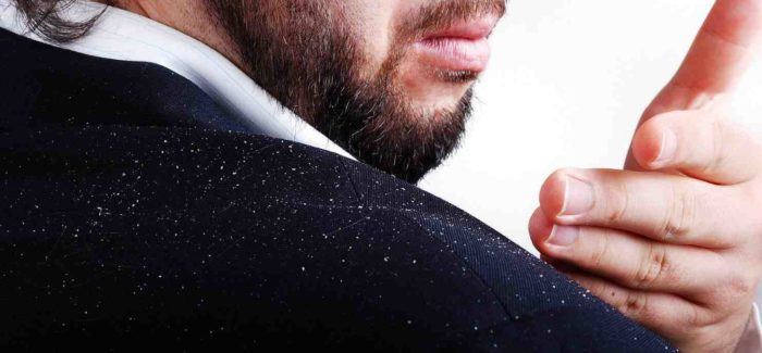 Dandruff – causes and treatments