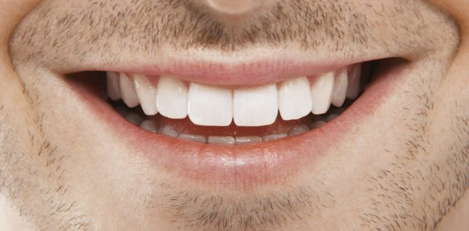 Alpha Male Guide to white teeth