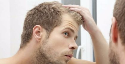 Men's hair loss treatment options
