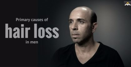 Primary causes of hair loss in men